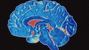 Les symptômes de la maladie d'Alzheimer comprennent la perte de mémoire, sautes d'humeur, et des problèmes de communication et de raisonnement