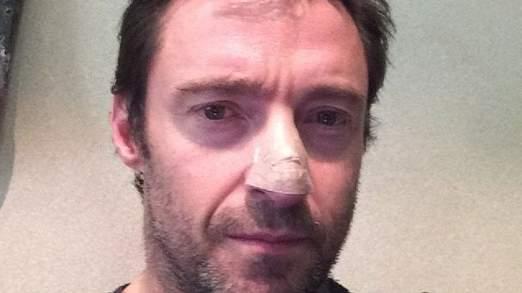 Hugh Jackman a révélé sa peur du cancer sur les médias sociaux