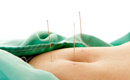 Acupuncture permet de maigrir