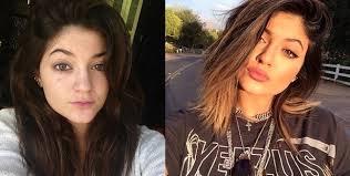 Kylie Jenner avant la chirugie et après
